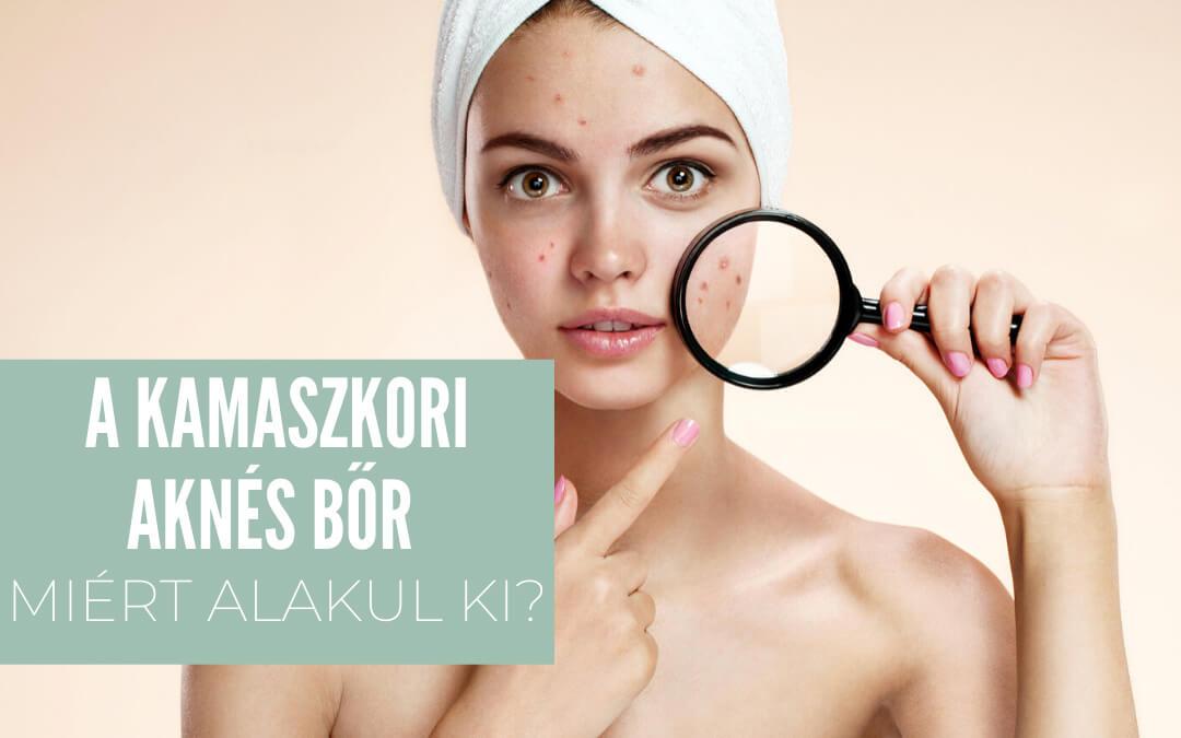A kamaszkori aknés bőr – Miért alakul ki?